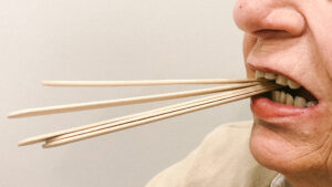 trismus lock jaw treatment
